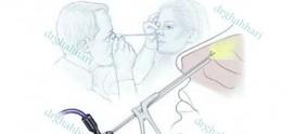 جراحی آندوسکوپی بینی و سینوس و هیپوفیز