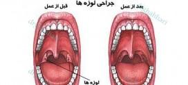 مراقبت های قبل و بعد از جراحی لوزه