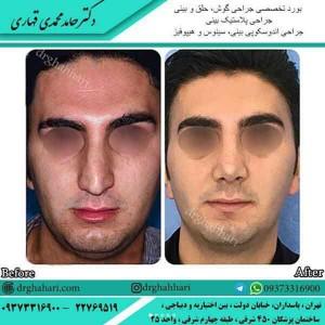 جراح بینی تهران