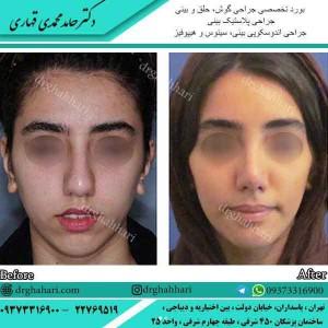 دستورات مراقبت جراحی زیبایی بینی