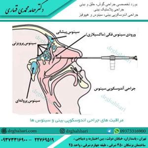 مراقبت جراحی اندوسکوپی بینی و سینوس