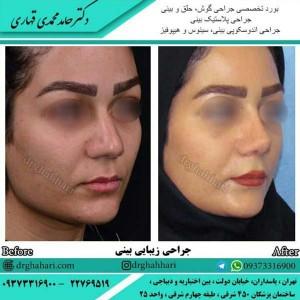 جراح بینی عالی در تهران