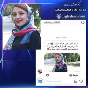 عمل زیبایی بینی در تهران
