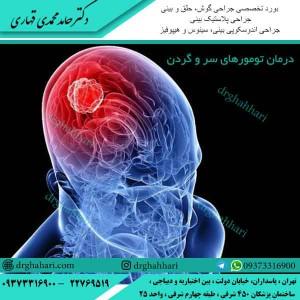درمان تومورهای سر و گردن