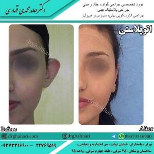 جراح پلاستیک بینی و صورت