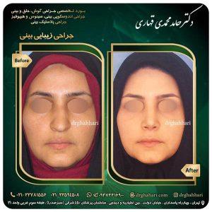 جراحی بینی در تهران